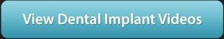 Dental Implant Video