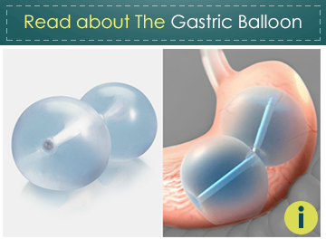 Read about the Gastric Balloon