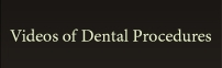 Videos of Dental Procedures